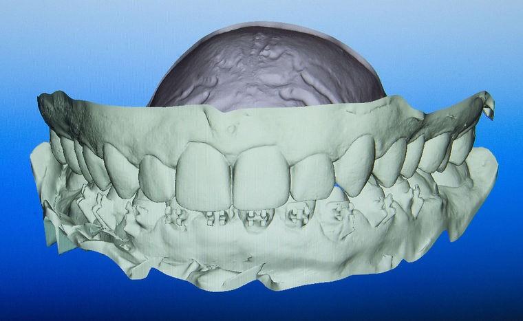 牙齿扫描仪_牙齿三维扫描仪假牙义齿3D扫描仪牙模三维扫